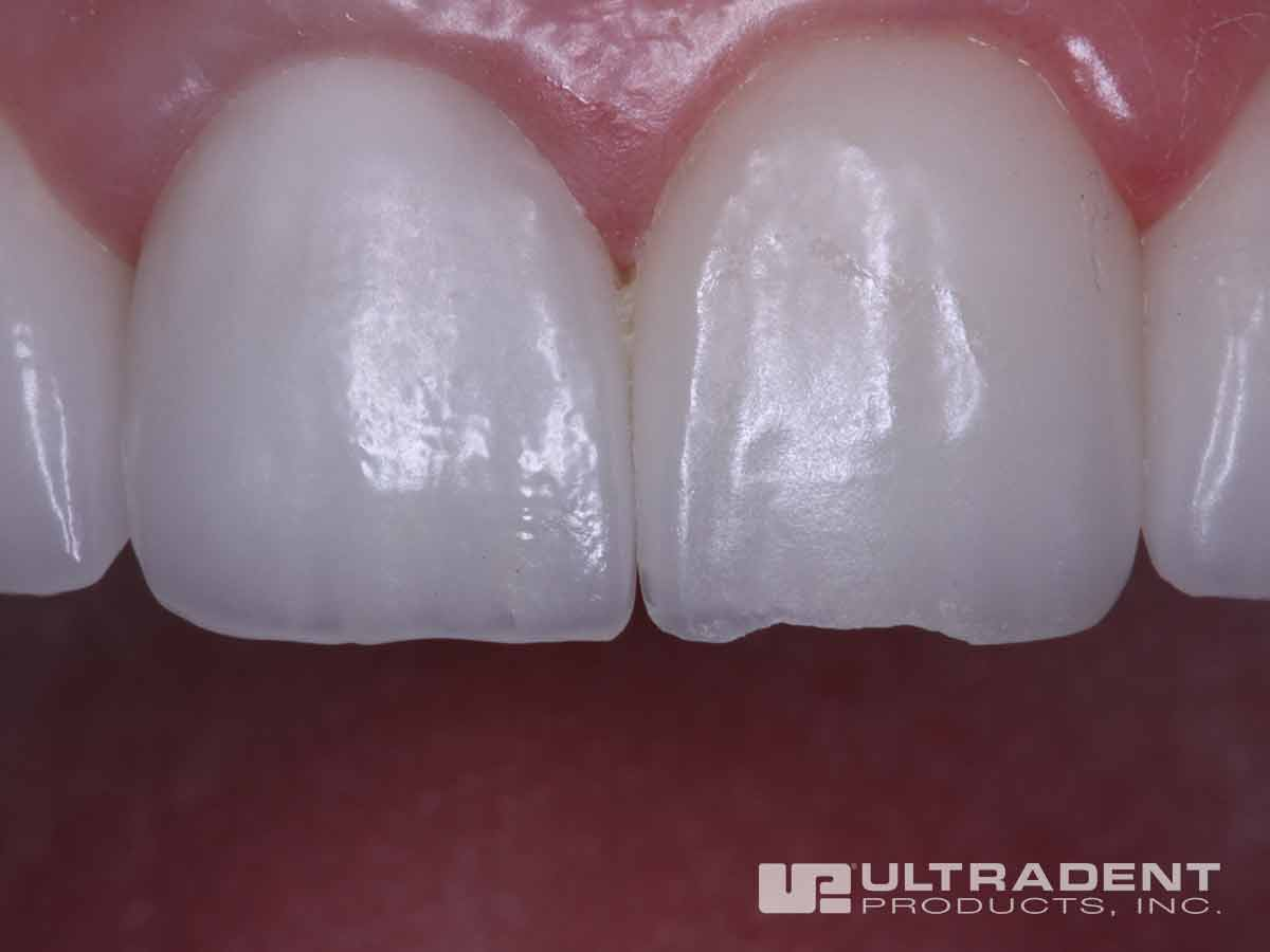 Etch Silane Bond Resin And Flowable Composite Ultradent
