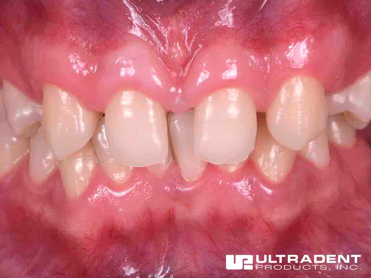 Before Uveneer – Dr. Todd D. Manolis