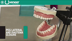 Uveneer Peg Lateral and Diastema Closure